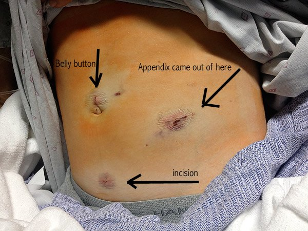 Enoch's Ruptured Appendix: Symptoms and Surgery